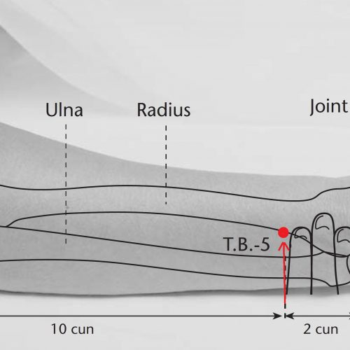 point acupuncture tb 5