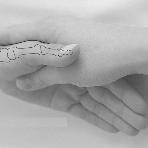 point acupuncture poignet