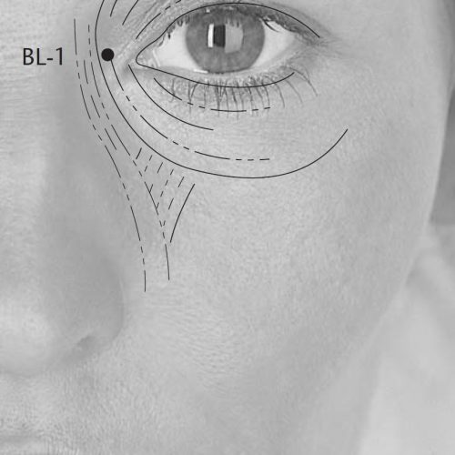 point acupuncture bl1